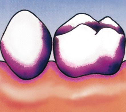 Sichtbarmachung der bakteriellen Zahnbeläge.